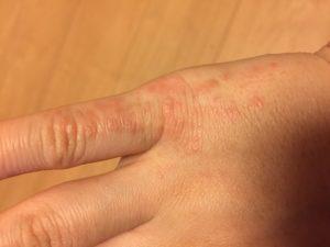 紫外線アレルギー 手の甲 指