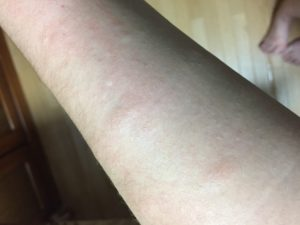 紫外線アレルギー 腕