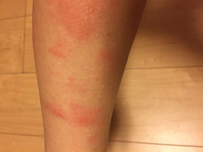 紫外線アレルギー,多形日光疹