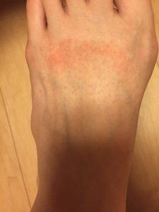紫外線アレルギー サンダル 足
