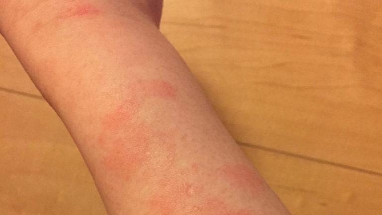 日光アレルギー 腕 症状